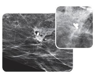 Biopsiamarkkerit rintabiopsioihin